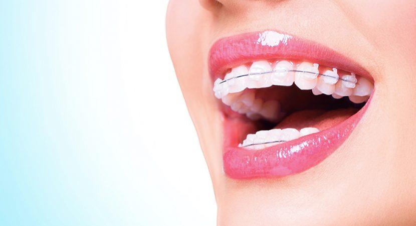 ortodonciaen barcelona